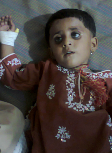 Child admitted with Gastroenteritis - Shikarpur