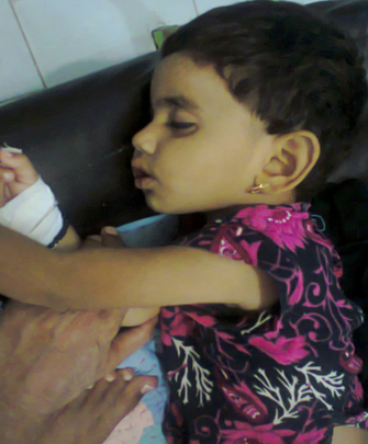 Child admitted with malaria  - Shikarpur