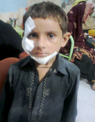 Child admitted with Injuries- Shikarpur