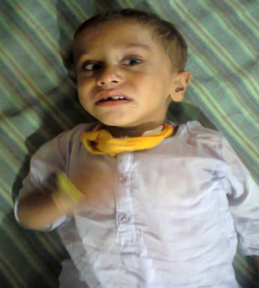 Child admitted with malaria and fits- Shikarpur