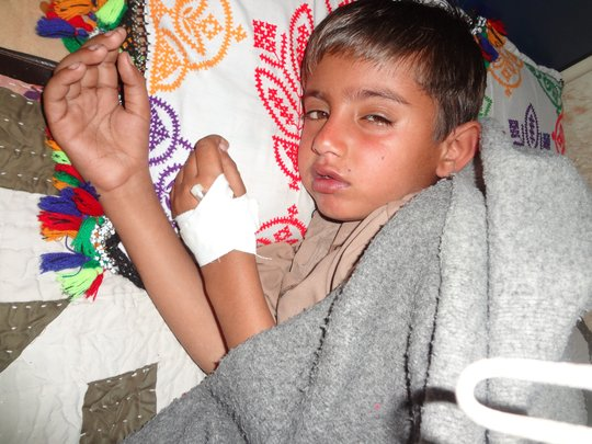 Child with  fever and infection- Shikarpur, 2014