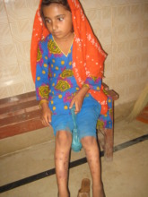 Nasreen after treatment