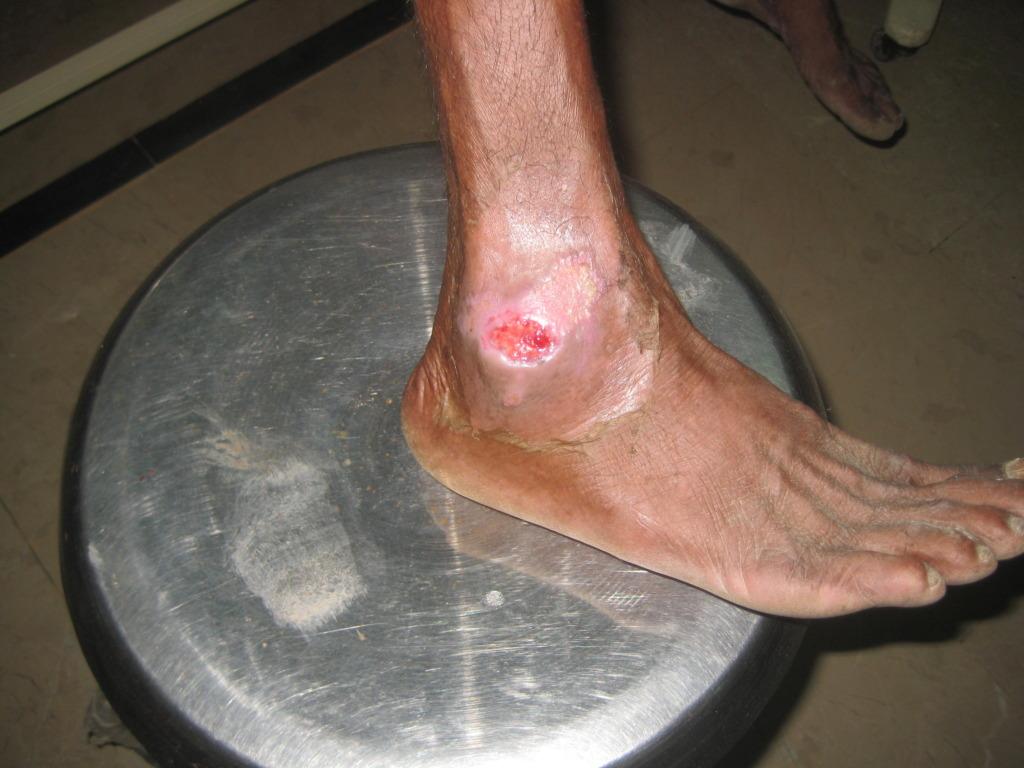 Healed injury
