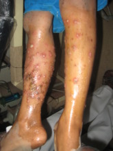 Nasreen's infected leg