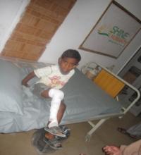 Sumar during treatment