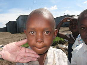 Boy with protruding eyeballs