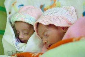 The Twins - Maria Jose and Miriam Guadalupe