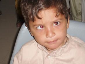 A squint child patient