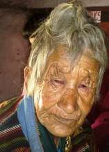 Cataract Surgery Patient