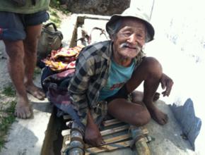 86-year-old Jabjay before eye surgery