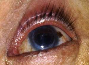 Patient's eye post surgery