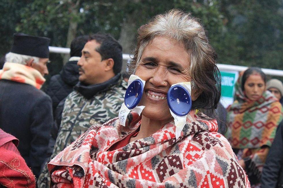 Nepalese patient.