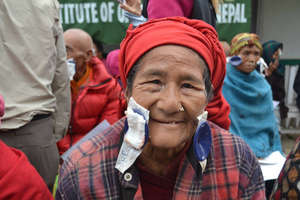 A patient after a successful cataract surgery.
