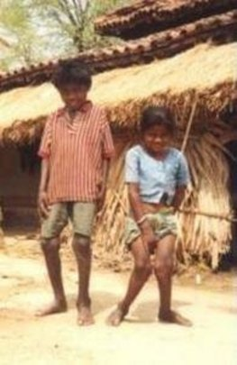 Children with Fluorosis