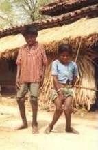 Children with Fluorosis