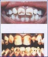 Teeth of Fluorosed children