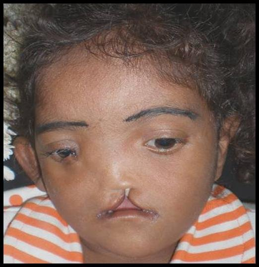 treat 200 patients  with facial deformities