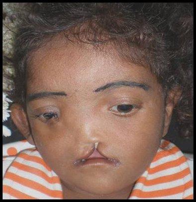 Treating Facial Deformities 2
