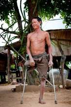 A mine victim in Cambodia