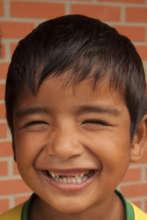 Bolivian boy to receive dental treatment