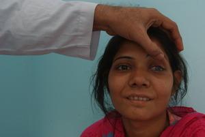 Kiran's after successful corneal transplant