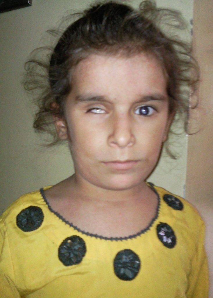 Baby Sajida before Corneal Transplant