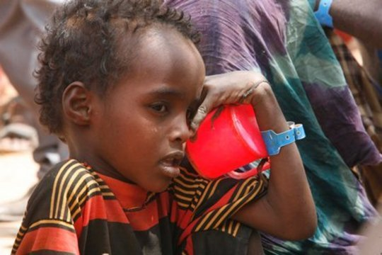 Somali child awaits treatment from UNHCR