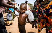 East Africa Drought Crisis