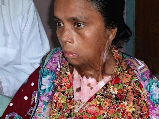 Burn Vicitim Paitent @ MAAWS Health Complex