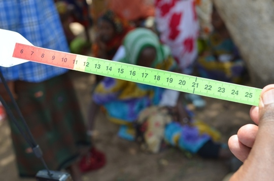 Upper arm band used to check for malnutrition