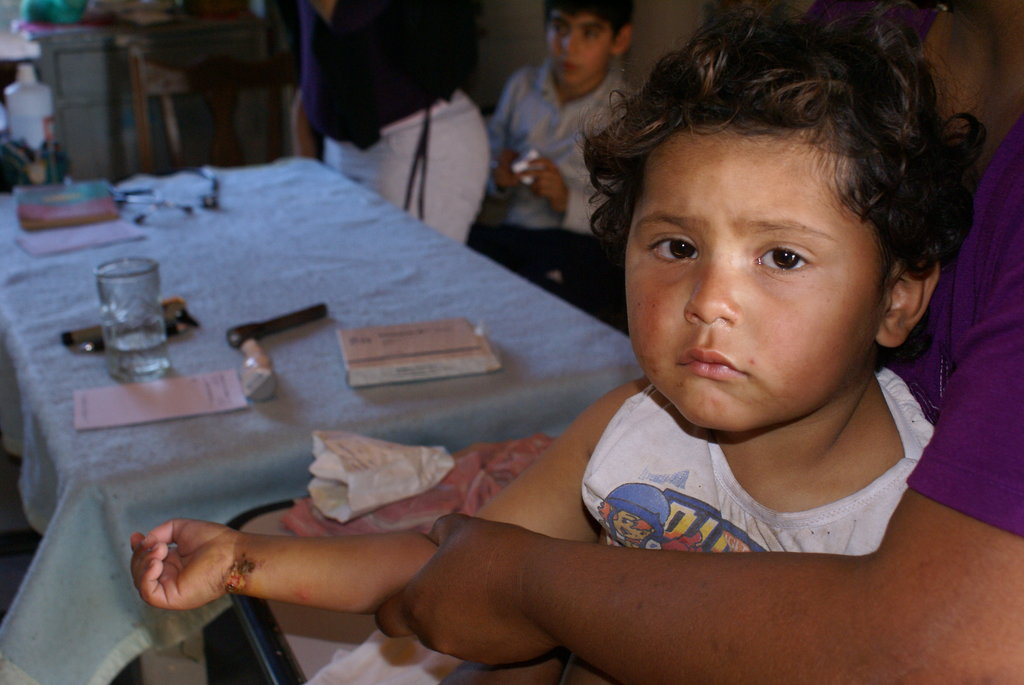 Children do not have access to a health programs. During the revisions, Doctors take a care also of cases where children have suffered an accident like the one shown in the picture (burn in his right wrist). In their precarious situation a small injury could became a live risk situation.