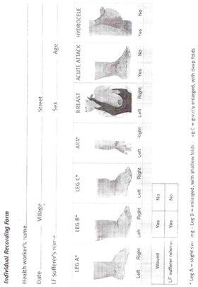 LF Patients Individual Recording Form