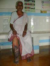 Filariasis Patient