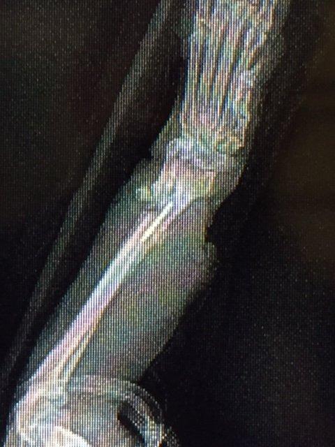 X-Ray 1