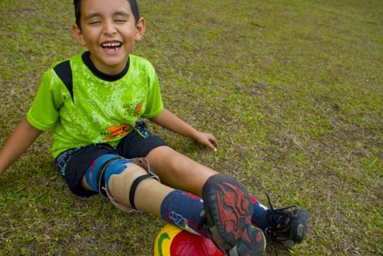 Give prosthetic legs for 100 Children in Colombia