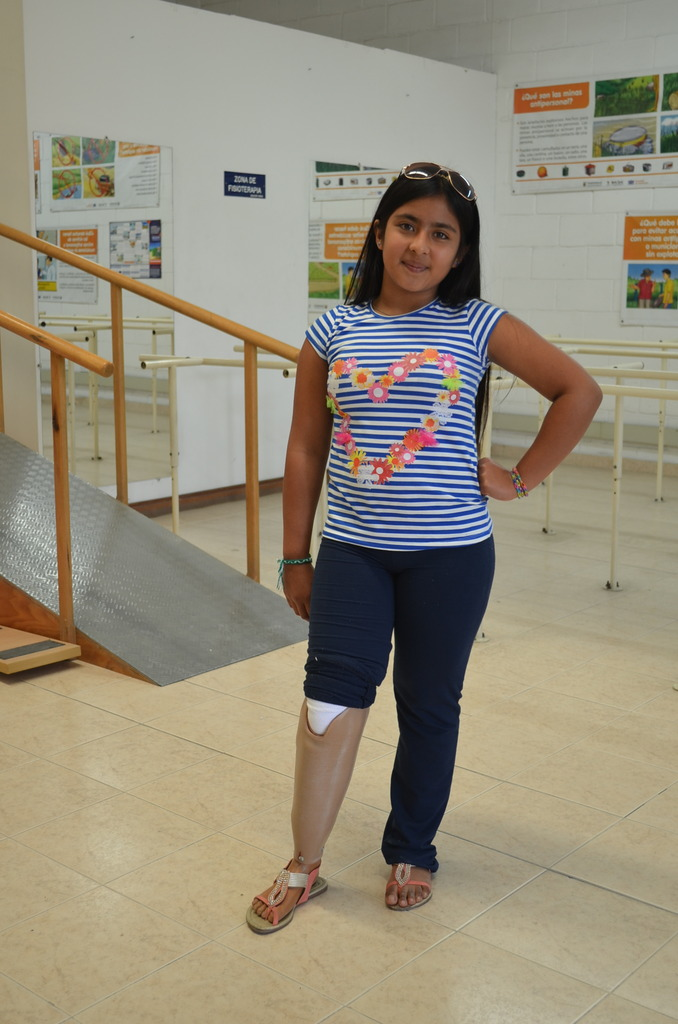 Angelica posing with her new leg!