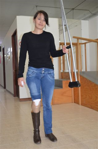 Aleida and her new leg