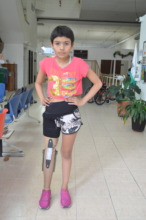 She looks just gorgeous with her new leg!