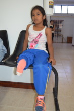 The wait was long, but the prosthesis is here