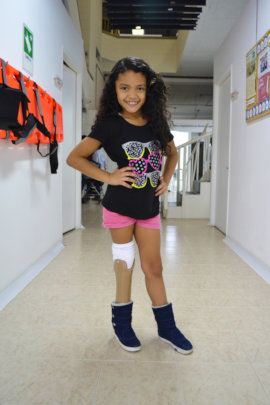 Darlys proudly wears her new prosthetic
