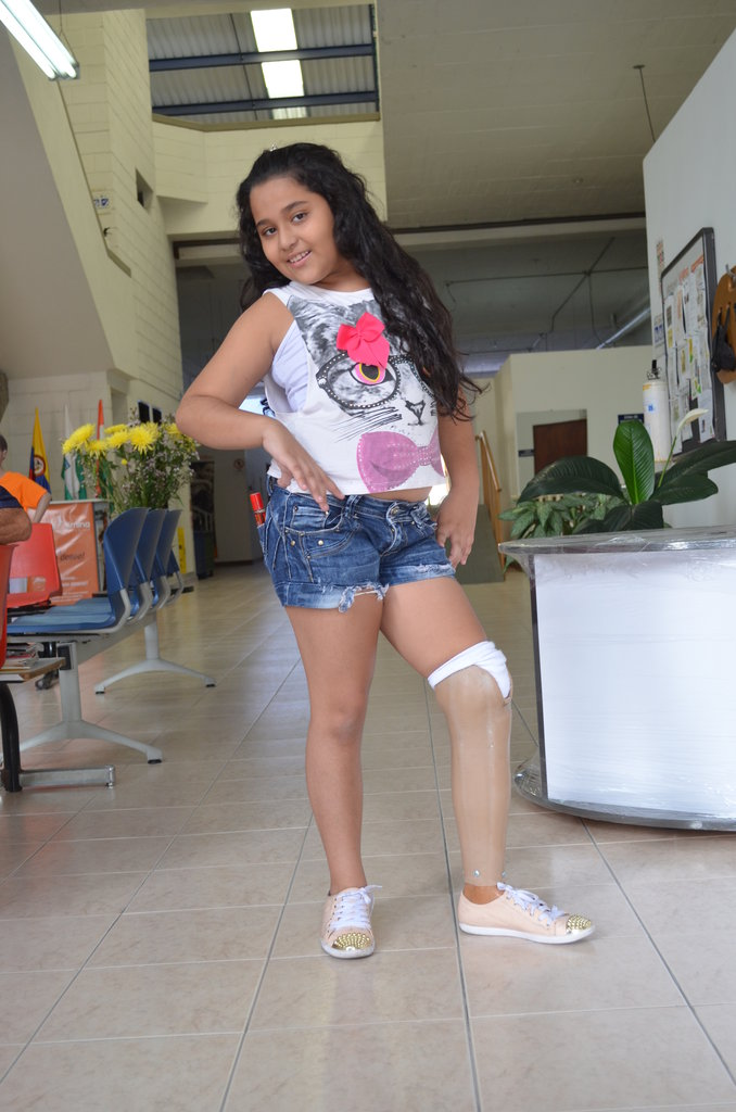 Juliana showing off her new leg!