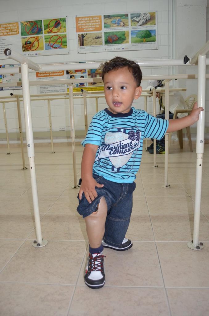 Matias happy with his knew leg!