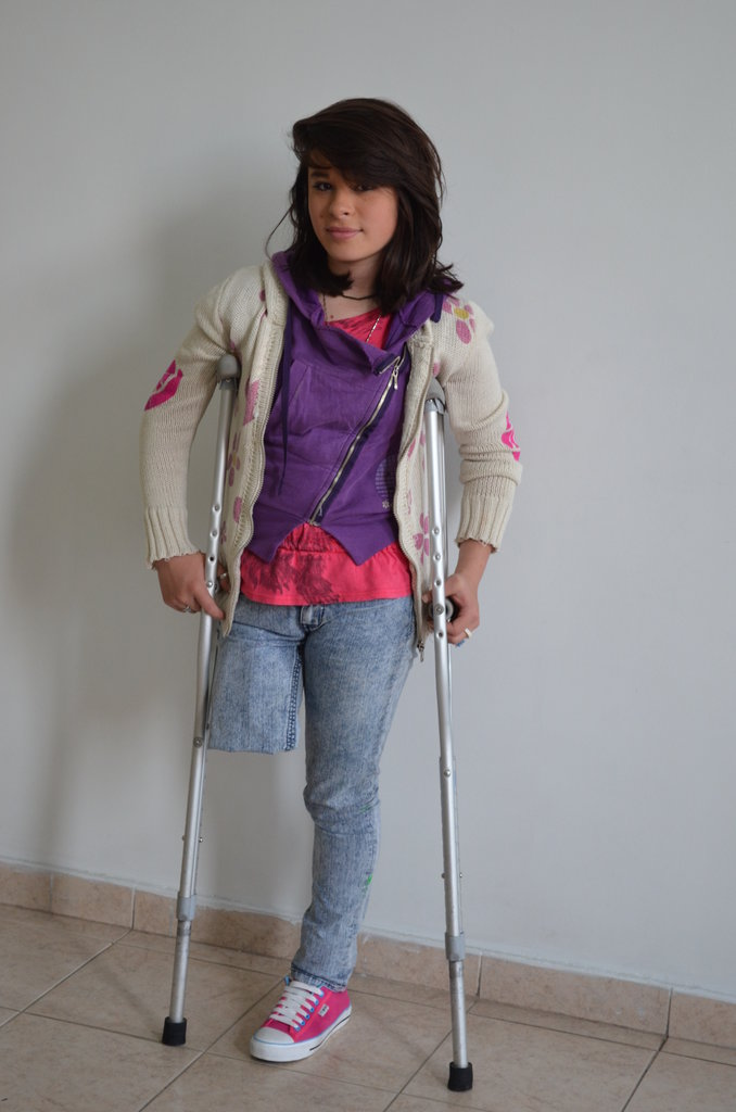 Sara before getting her new prostheses