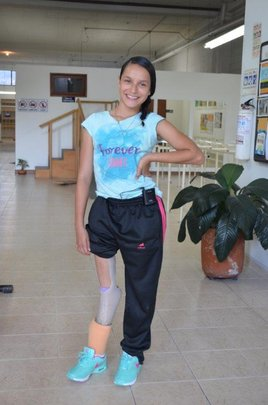 Yenny and her new better leg!