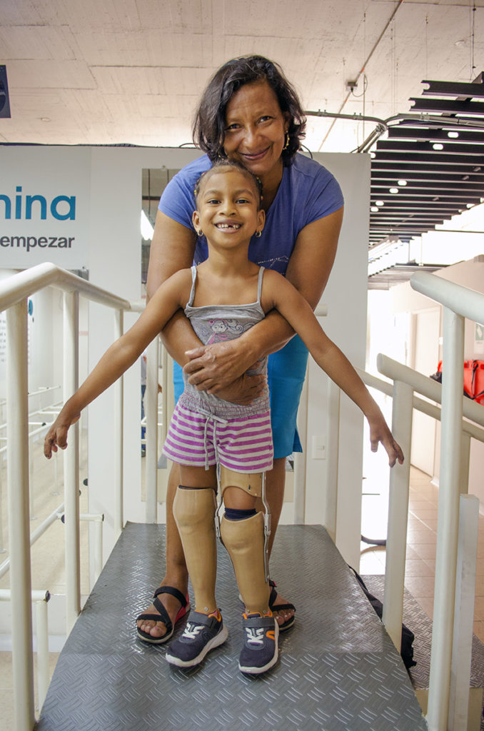 Give prosthetic legs for 130 Children in Colombia