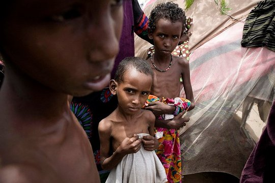 Severely malnourished children await aid.