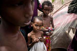 Severely malnourished children await aid.