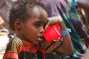 A Somali child awaits malnutrition treatment