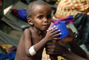 Save Somali Refugee Children from Malnutrition