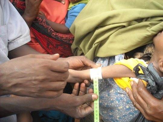 Testing for malnutrition using a MUAC strip